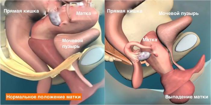 фото выпадение матки у женщин