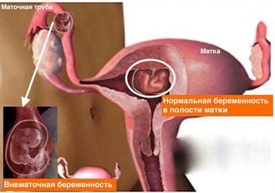 Операция при внематочной беременности. Хирургические методы лечения.