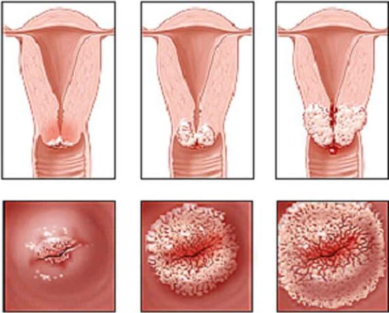 при каком заболевании пахнет ацетоном изо рта