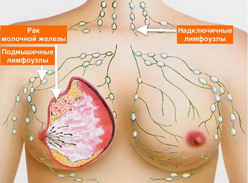 Дюфастон увеличение груди мед увеличивает грудь