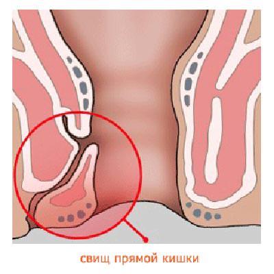 Как проходит операция по удалению анального свища