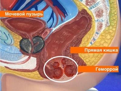 геморрой лечение кривой рог