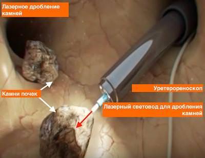 Герпесный стоматит симптомы фото лечение
